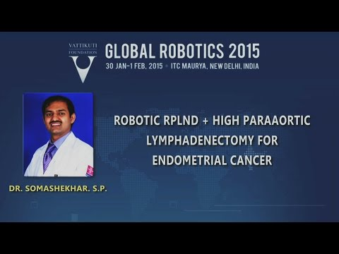 Robotic RPLND and High Paraaortic Lymphadenectomy for Endometrial Cancer