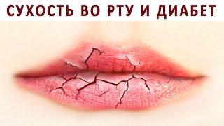 Почему бывает сухость во рту (ксеростомия) при сахарном диабете?