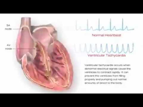 Hipertension përfitimit
