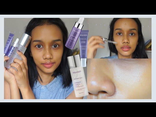 Review 18 Hari Pemakaian Wardah Renew You Serum, Eye Cream & Essence