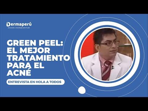 Dr. Aparcana en el programa Hola a Todos – Tratamiento de acne