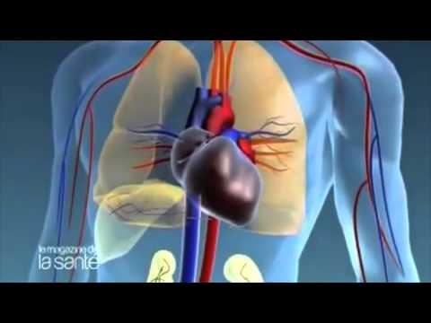 La phlébite aiguë des veines superficielles la clinique
