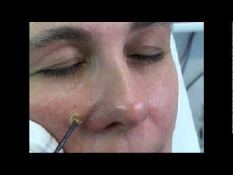 Was, um zu machen die Poren auf der Person zu verringern