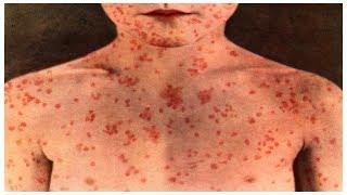 അഞ്ചാം പനി: ലക്ഷണം പ്രതിവിധി | Measles Rubella | Doctor Q | News18 Kerala
