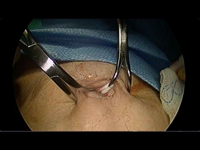 Direct Trocar Entry into Umbilicus (No Veress Needle!)