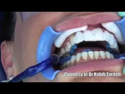 Lumineers Hollywood smile veneers cosmetic dentistry step by step by Dr.Habib Zarifeh