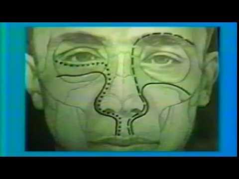 Cum este tratat papilomul uman