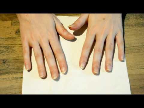 Le microorganisme végétal sur les ongles des mains le traitement les préparations de longuent