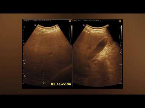 Omnadren and prostatitis