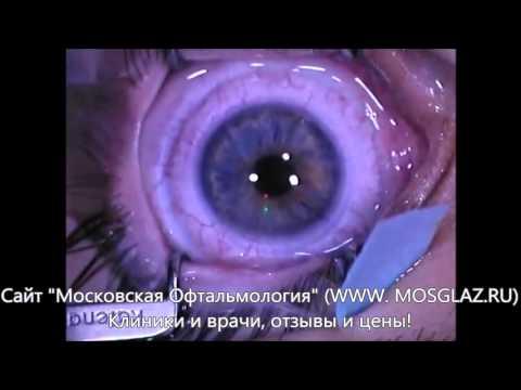 Острота зрения правый глаз