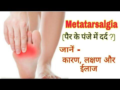 Semne de artroză a articulațiilor intervertebrale