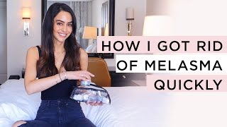 Melasma Hyperpigmentation Treatment 2019 | Dr Mona Vand