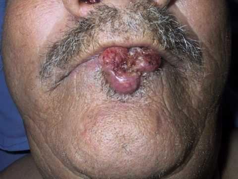 Laryngeal papilloma surgery
