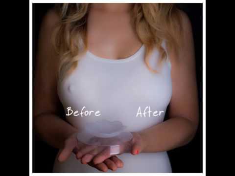 Matinding pamamaga ng isa sa suso matapos mammoplasty