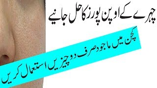 How to Remove Blackheads From Nose & Face#Blackhead Khatam