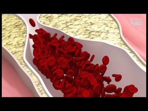 Hipertoniczne i hipotoniczne IRR