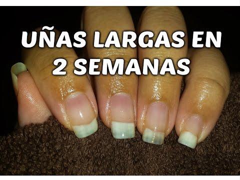 La psoriasis en las manos y las uñas los síntomas el tratamiento
