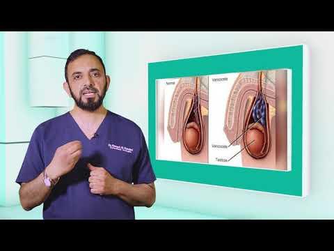 Prostatitis melegítő kenőcs