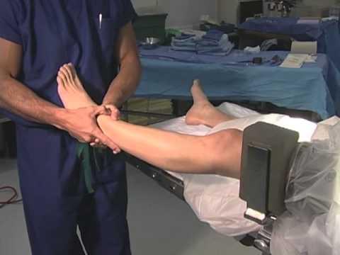 Wie Schwellung des Kniegelenks Arthritis entfernen