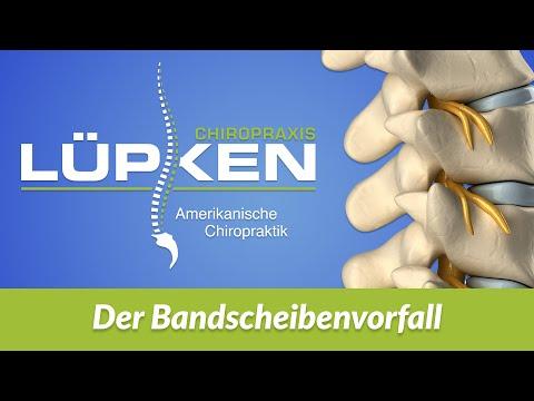 Vertebrobasiläre Insuffizienz zervikale Osteochondrose