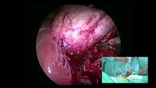 Single Port Laparoscopic Cholecystectomy