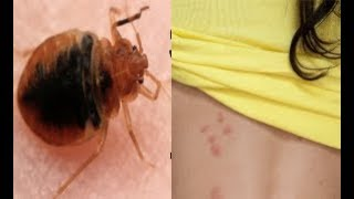 Do You Have Bed Bug Bites? 5 Bed Bug Bite Symptoms to Check for