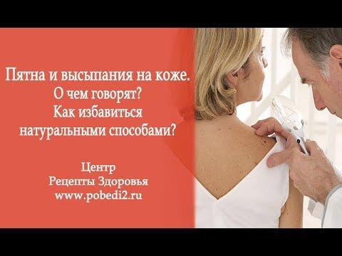 Рецепт отбеливания кожи в интимных местах