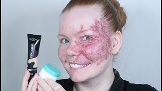 Burns and Discoloration - Using my fave Full Coverage Foundations