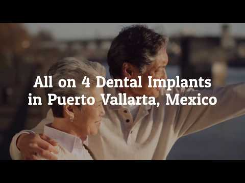 Best-Tips-on-All-on-4-Dental-Implants-in-Puerto-Vallarta-Mexico