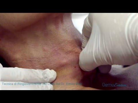 Quali esercizi sono dannosi a varicosity