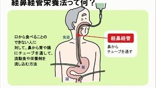経鼻経管栄養の人の口腔ケア