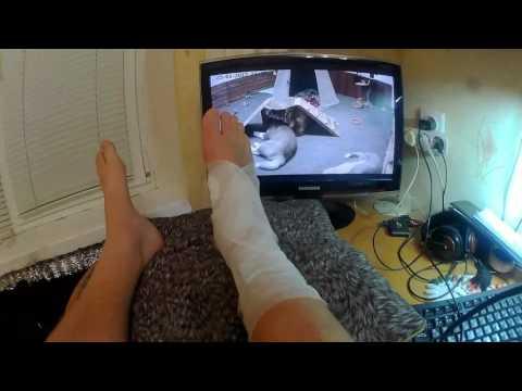 Перелом таранной кости, моя история часть 1