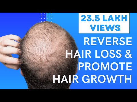 Video 5 Easy Ways To Reverse Hair Loss & Promote Hair Growth