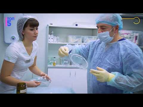 Les astérisques vasculeux le traitement et la prophylaxie