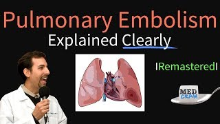 Pulmonary Embolism Remastered - Pathophysiology, Symptoms, Diagnosis, DVT