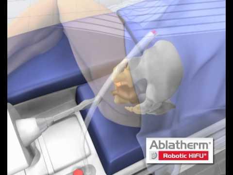 Fibro-ghiandolare iperplasia prostatica
