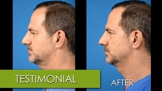 """Dr. Clevens – Patient Testimonial – Kybella """"The Double Chin Fix"""""""