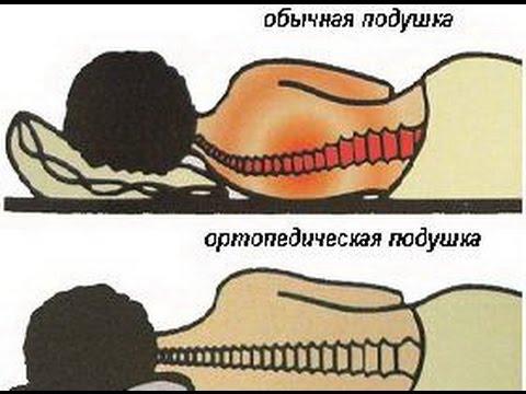 Лечение сколиоза 3 степени упражнения