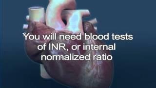 Atrial Fibrillation C  Treatment, Medications,  Blood Thinners, Warfarin