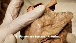 HEART Morphology APEX BASE P SINUSES CORONARY SULCUS Clinical Aspects – Sanjoy Sanyal