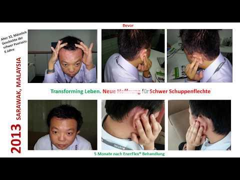 Was mit dem Haar bei der Schuppenflechte zu machen