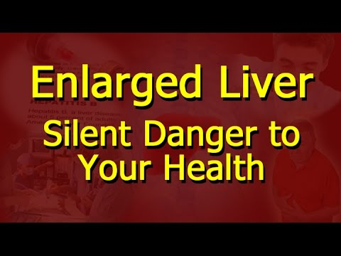 Video Enlarged Liver - Silent Danger to Your Health