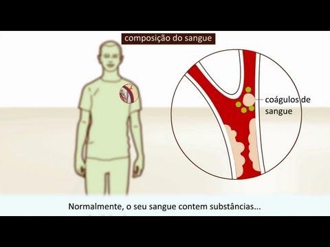 Enfermedad arterial en pacientes con hipertensión arterial