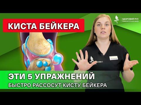 КАК лечить кисту Бейкера БЕЗ операции? 5 упражнений для профилактики и лечения. Киста Бейкера