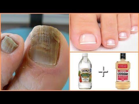 El hongo de las uñas de los pies y las manos las revocaciones