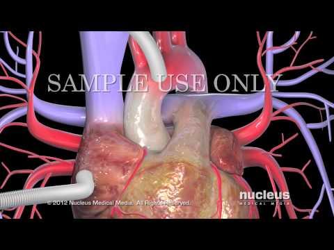 Tratamiento de la enfermedad degenerativa del disco de la instrumentación de la columna cervical