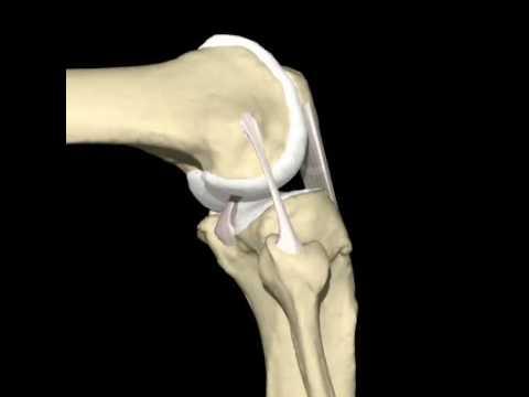 Mal congiunta del dito medio al gomito