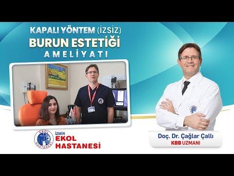 Kapalı Burun Estetiği Ameliyatı - Doç. Dr. Çağlar Çallı - İzmir Ekol Hastanesi