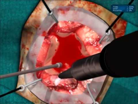 Microneurosurgery Training - NeuroTouch Simulator - Part 1