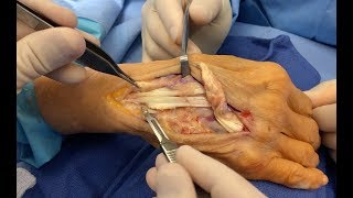 Spontaneous Extensor Tendon Rupture and Repair